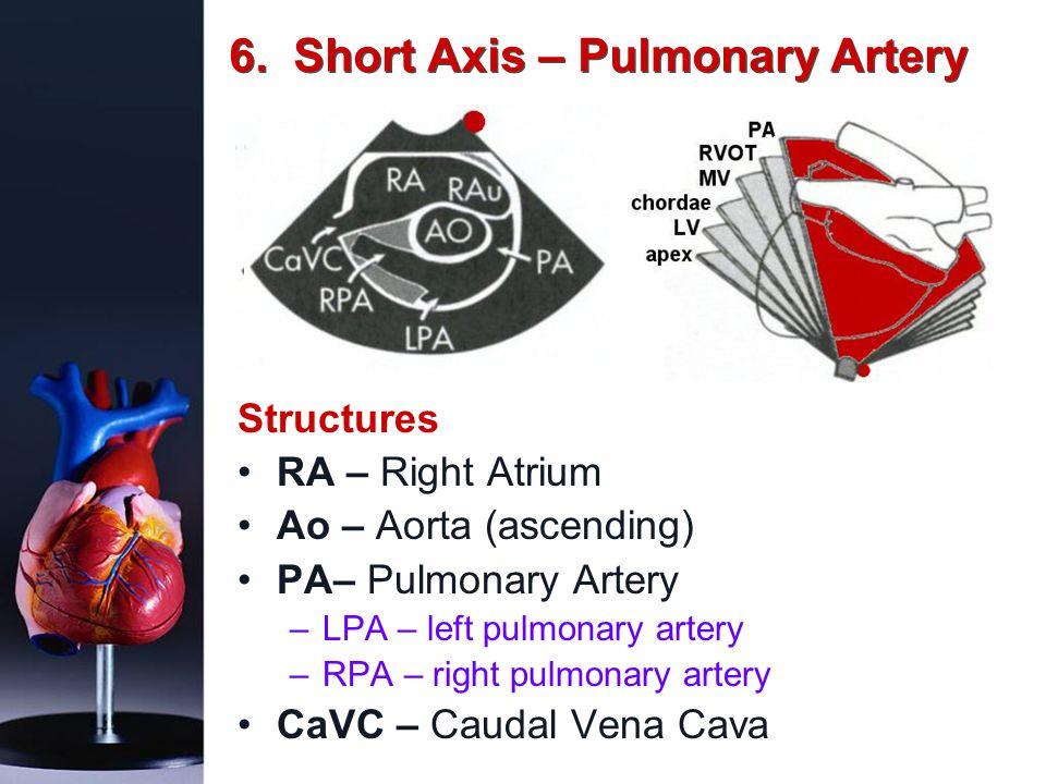 6. Short Axis – Pulmonary Artery Structures RA – Right Atrium Ao – Aorta (ascending) PA– Pulmonary Artery –LPA – left pulmonary artery –RPA – right pu