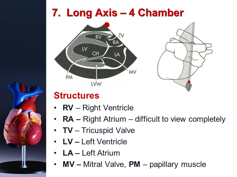 7. Long Axis – 4 Chamber Structures RV – Right Ventricle RA – Right Atrium – difficult to view completely TV – Tricuspid Valve LV – Left Ventricle LA