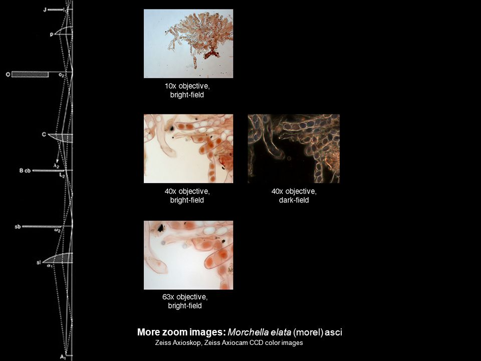 More zoom images: Morchella elata (morel) asci Zeiss Axioskop, Zeiss Axiocam CCD color images