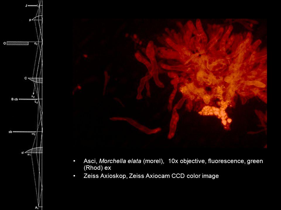 Asci, Morchella elata (morel), 10x objective, fluorescence, green (Rhod) ex Zeiss Axioskop, Zeiss Axiocam CCD color image