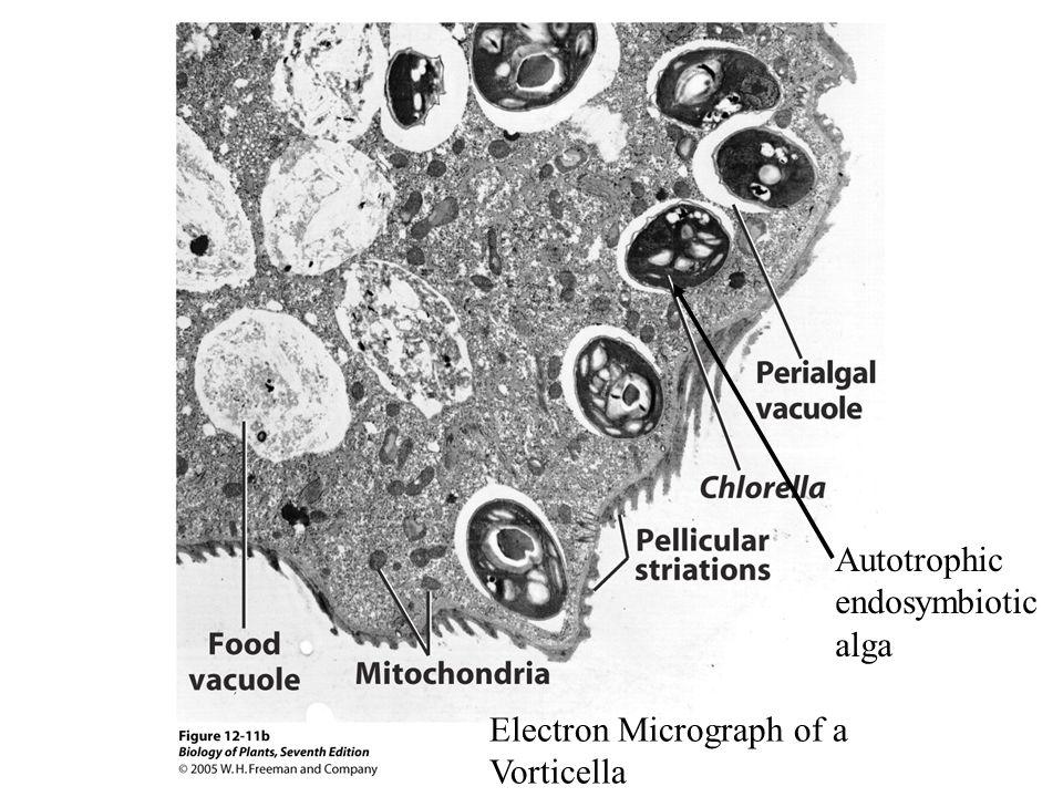 Electron Micrograph of a Vorticella Autotrophic endosymbiotic alga