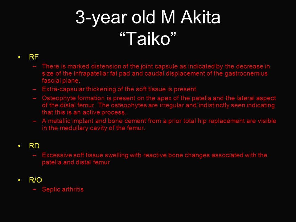 3-year old M Akita Taiko RF –There is marked distension of the joint capsule as indicated by the decrease in size of the infrapatellar fat pad and caudal displacement of the gastrocnemius fascial plane.