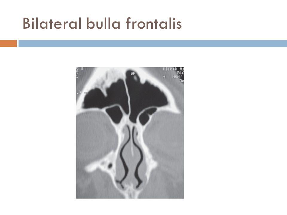 Bilateral bulla frontalis
