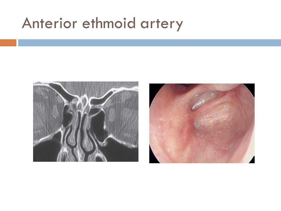 Anterior ethmoid artery