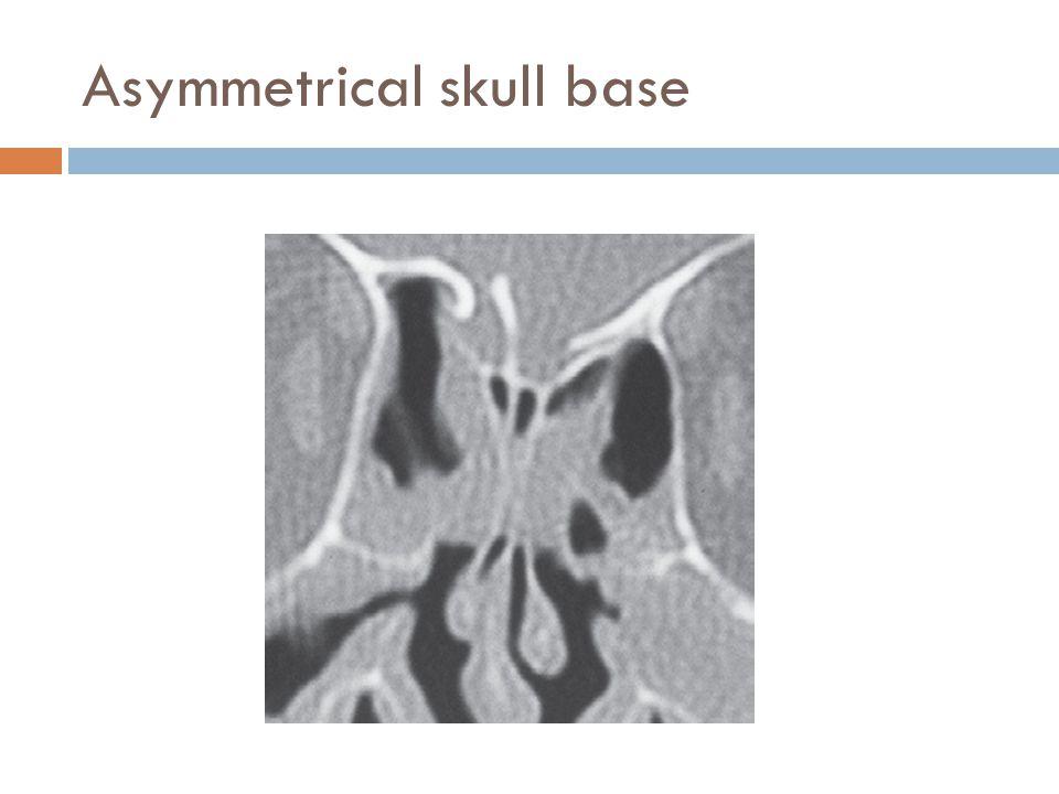 Asymmetrical skull base