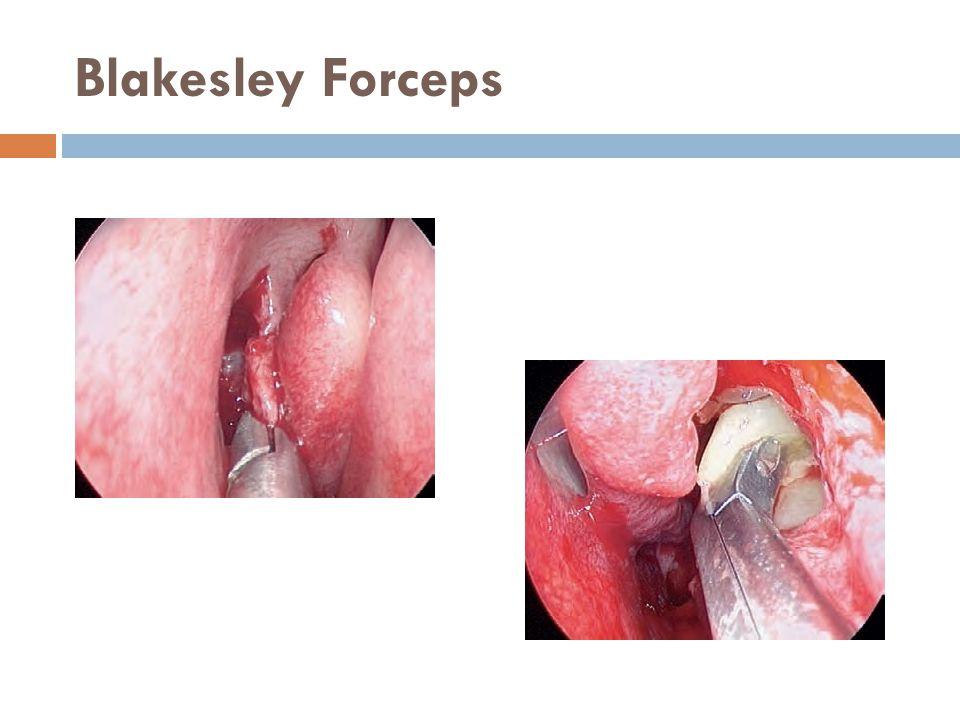 Blakesley Forceps