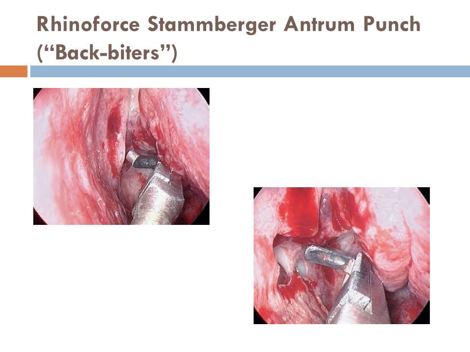 "Rhinoforce Stammberger Antrum Punch (""Back-biters"")"
