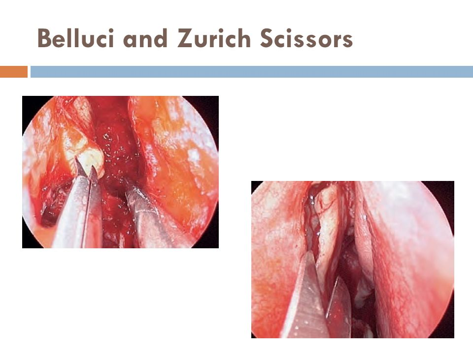 Belluci and Zurich Scissors