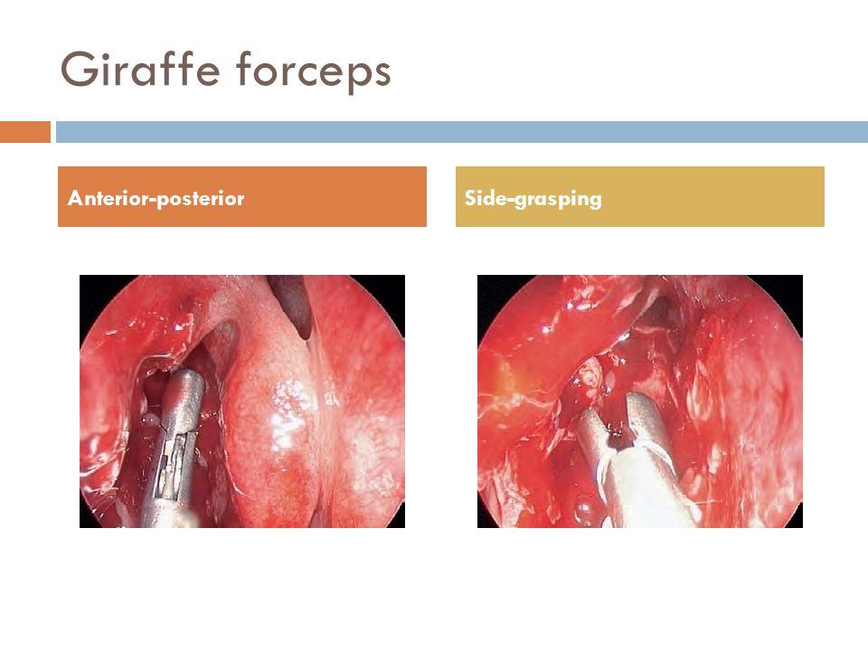 Giraffe forceps Anterior-posteriorSide-grasping