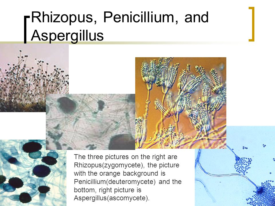 Conidia with conidiospores – any asexually spore producing stem is called a conidia. The following are both pictures of Penicillium