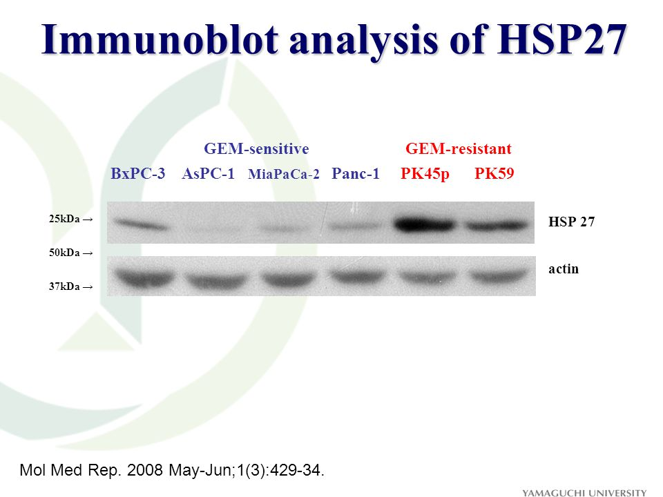 Immunoblot analysis of HSP27 HSP 27 25kDa → actin 37kDa → 50kDa → BxPC-3 AsPC-1 MiaPaCa-2 Panc-1 PK45p PK59 GEM-sensitiveGEM-resistant Mol Med Rep.