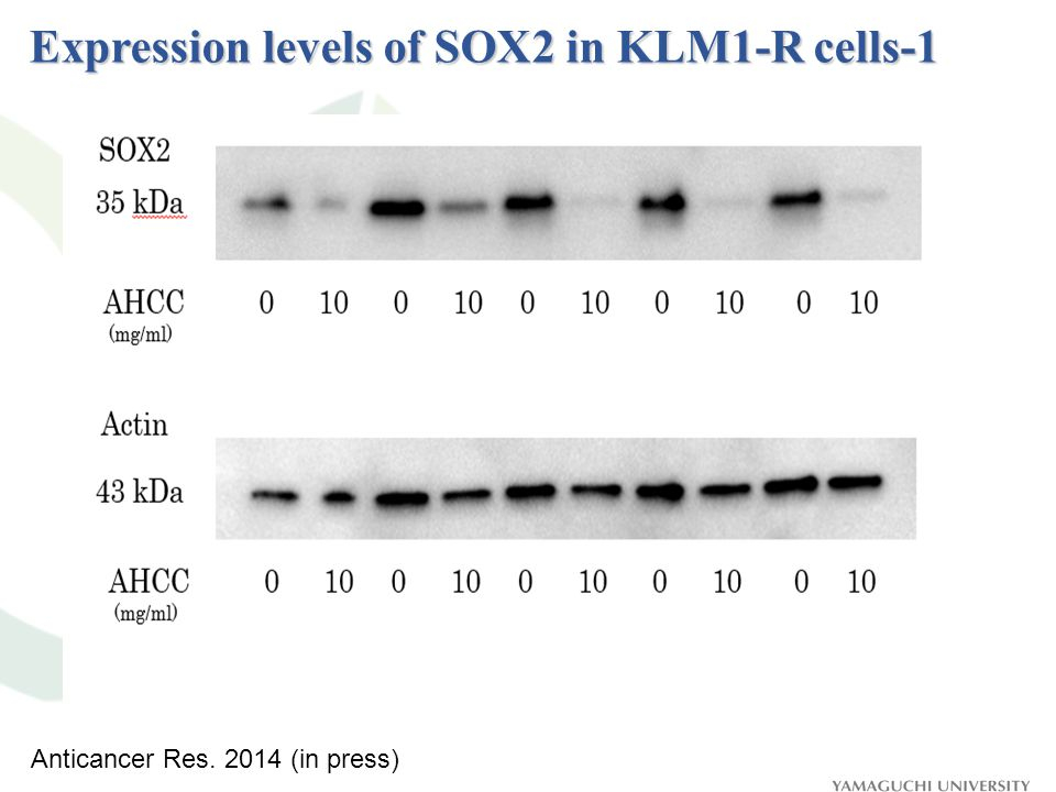 Expression levels of SOX2 in KLM1-R cells-1 Anticancer Res. 2014 (in press)