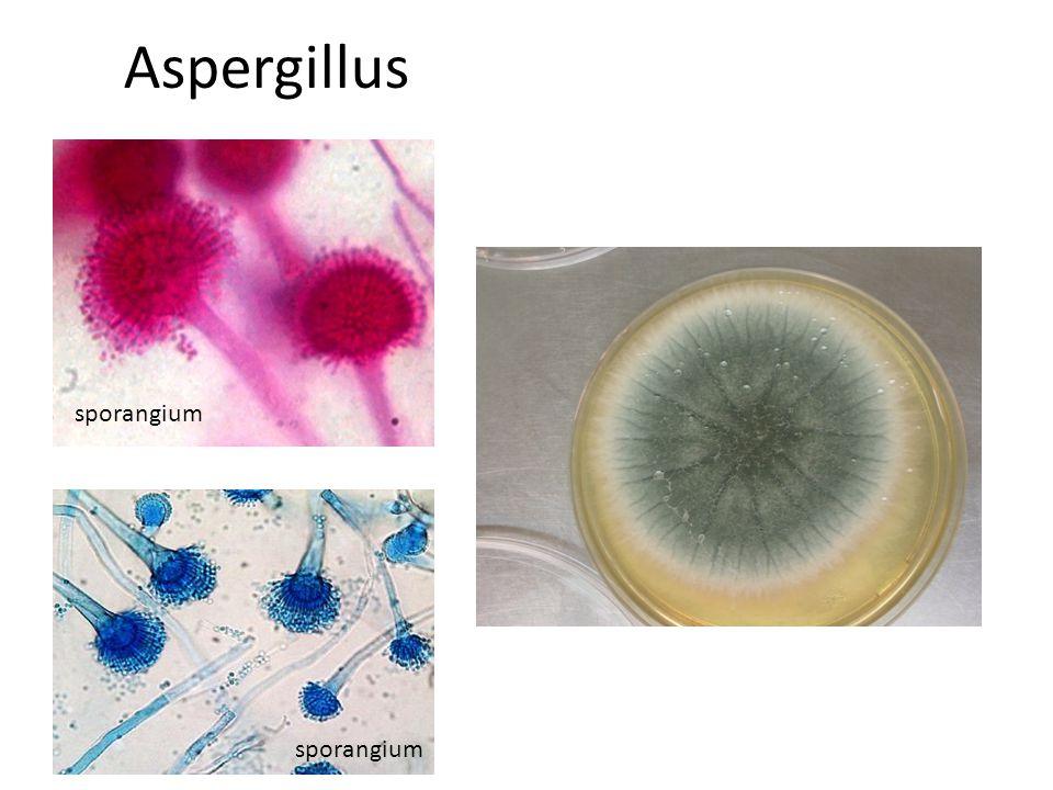 Aspergillus sporangium