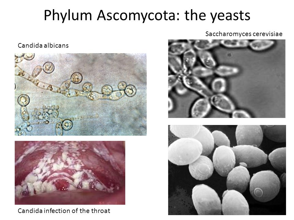 Phylum Ascomycota: the yeasts Candida albicans Candida infection of the throat Saccharomyces cerevisiae