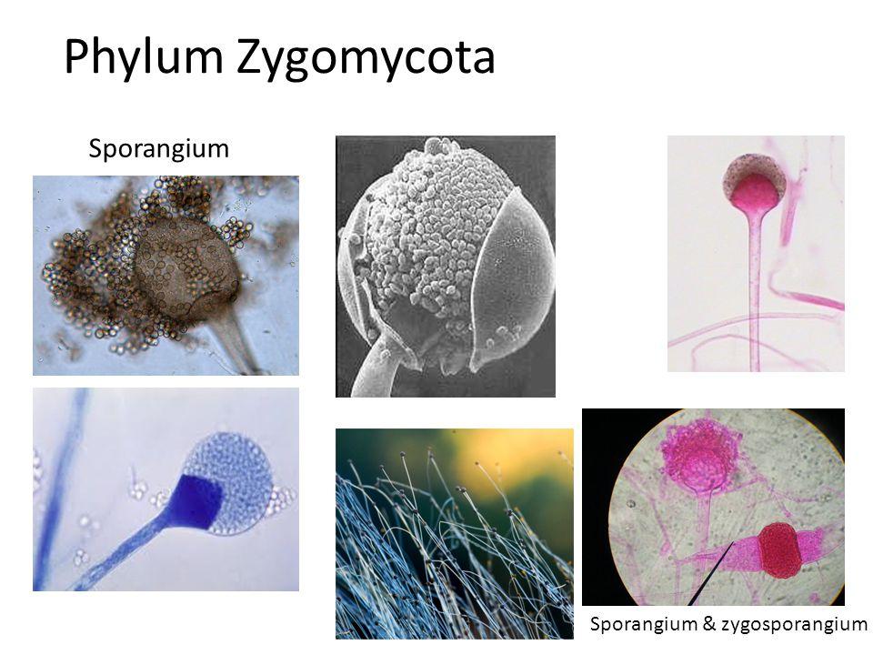 Phylum Zygomycota Sporangium Sporangium & zygosporangium