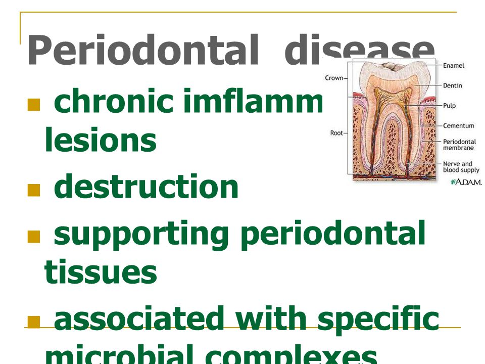 Periodontal disease chronic imflammatory lesions destruction supporting periodontal tissues associated with specific microbial complexes in subgingival biofilms