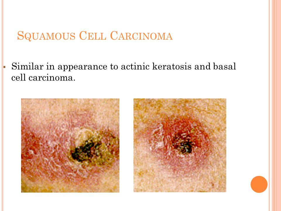 S QUAMOUS C ELL C ARCINOMA  Similar in appearance to actinic keratosis and basal cell carcinoma.