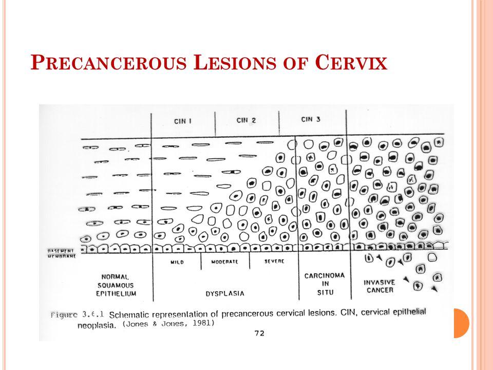 P RECANCEROUS L ESIONS OF C ERVIX