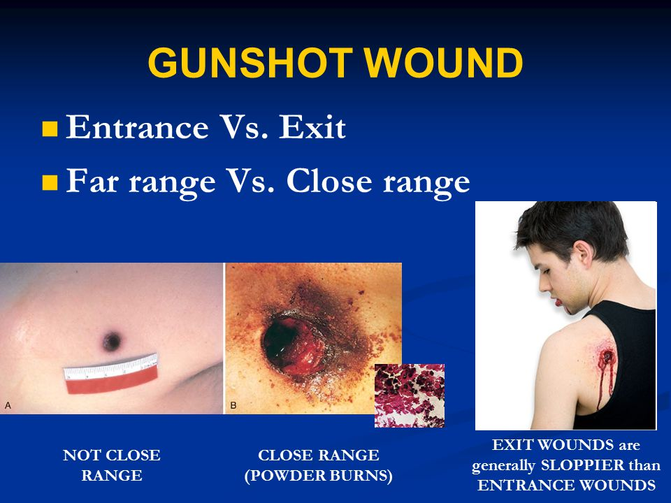 GUNSHOT WOUND Entrance Vs. Exit Far range Vs. Close range NOT CLOSE RANGE CLOSE RANGE (POWDER BURNS) EXIT WOUNDS are generally SLOPPIER than ENTRANCE