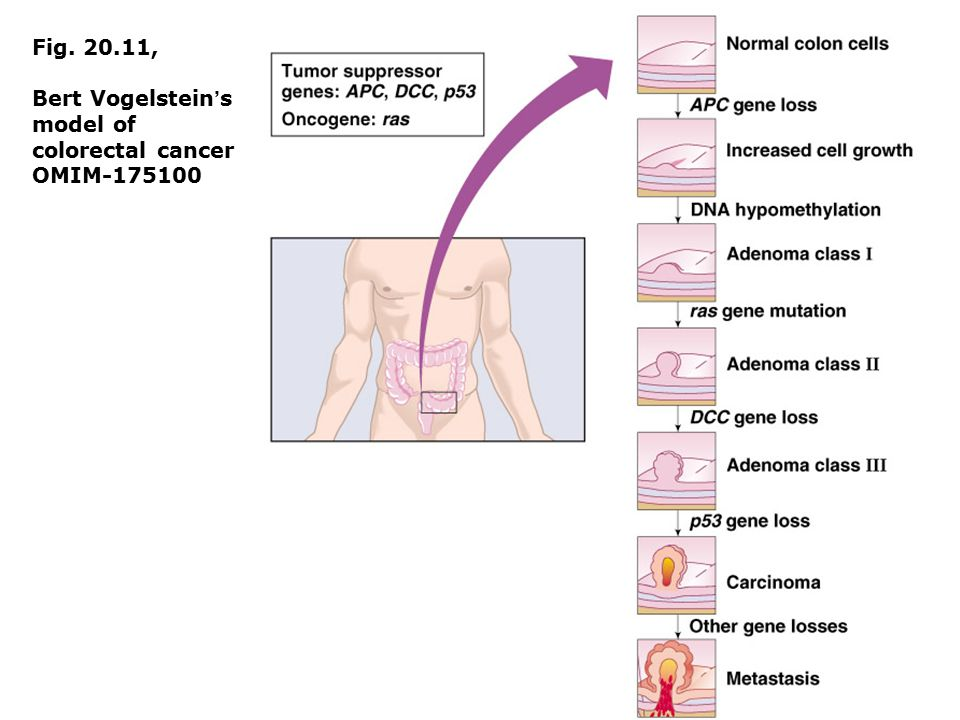 Fig. 20.11, Bert Vogelstein's model of colorectal cancer OMIM-175100