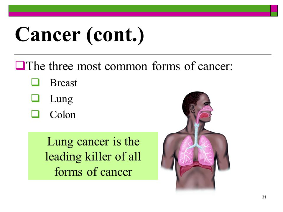 30 Cancer  Uncontrolled growth of abnormal cells  Cells often form growths called malignant tumors  200 different types of cancers are known  Carcinogen - factor that is known to cause the formation of cancer