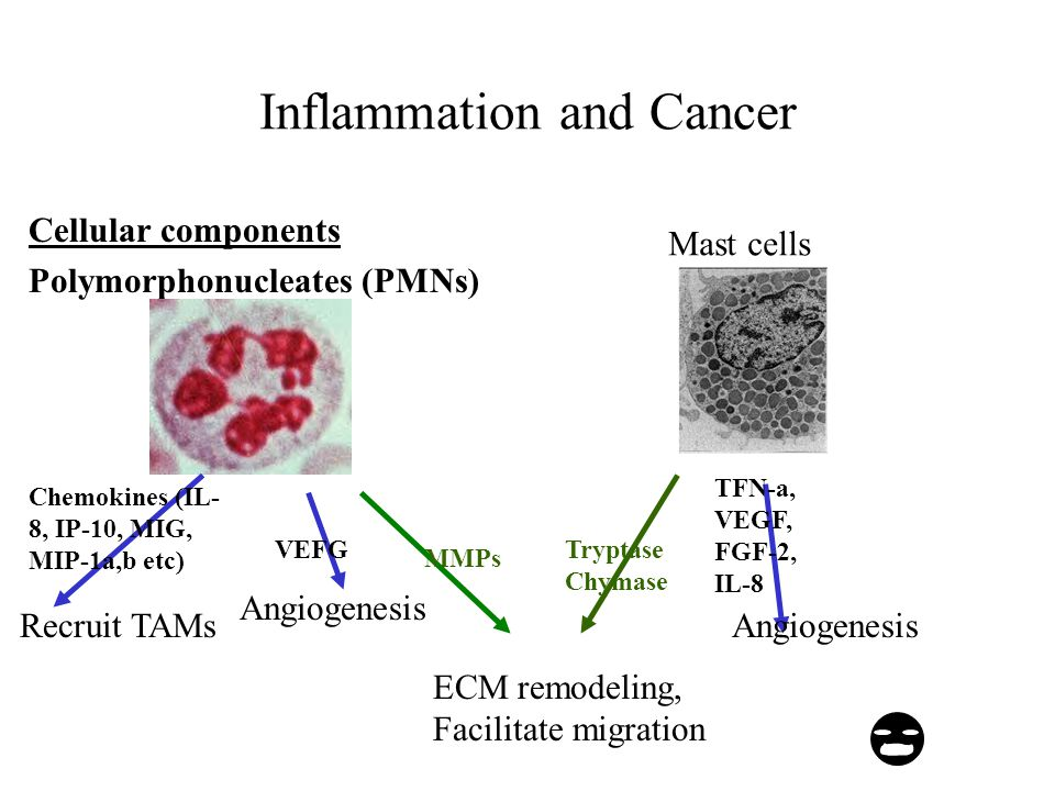 Inflammation and Cancer Cellular components Polymorphonucleates (PMNs) MMPs ECM remodeling, Facilitate migration Chemokines (IL- 8, IP-10, MIG, MIP-1a,b etc) Recruit TAMs VEFG Angiogenesis Mast cells TFN-a, VEGF, FGF-2, IL-8 Angiogenesis Tryptase Chymase