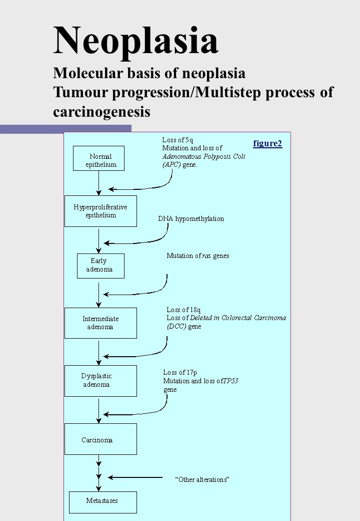 Neoplasia Molecular basis of neoplasia Tumour progression/Multistep process of carcinogenesis Tumour progression implies the gradual transition of a l