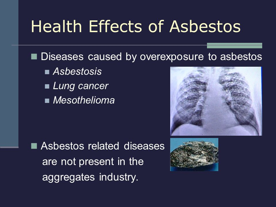 Health Effects of Asbestos Diseases caused by overexposure to asbestos Asbestosis Lung cancer Mesothelioma Asbestos related diseases are not present i