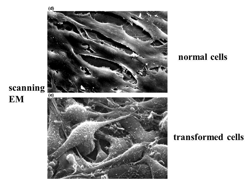 normal cells transformed cells scanning EM