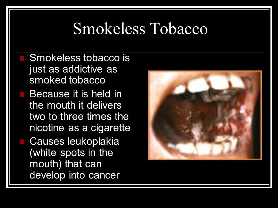 Smokeless Tobacco Damage Smokeless tobacco users sometimes require surgery to remove the cancer and infected tissue The surgery leaves the person with obvious deformities