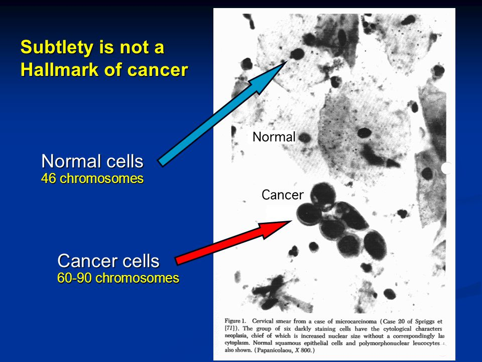 Normal cells 46 chromosomes Subtlety is not a Hallmark of cancer Cancer cells 60-90 chromosomes