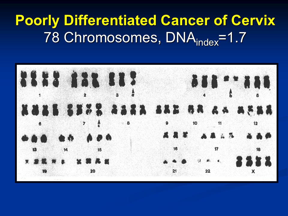 Poorly Differentiated Cancer of Cervix 78 Chromosomes, DNA index =1.7