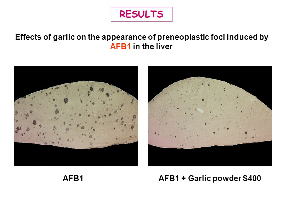 RESULTS Effects of garlic on the appearance of preneoplastic foci induced by AFB1 in the liver AFB1AFB1 + Garlic powder S400