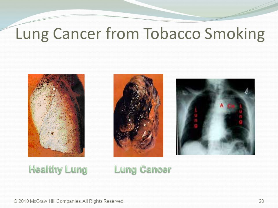 Lung Cancer from Tobacco Smoking © 2010 McGraw-Hill Companies. All Rights Reserved. 20