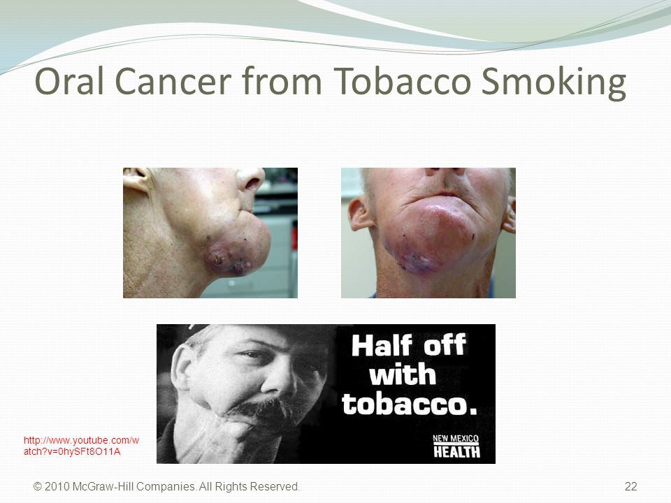 Oral Cancer from Tobacco Smoking © 2010 McGraw-Hill Companies. All Rights Reserved. 22 http://www.youtube.com/w atch?v=0hySFt8O11A