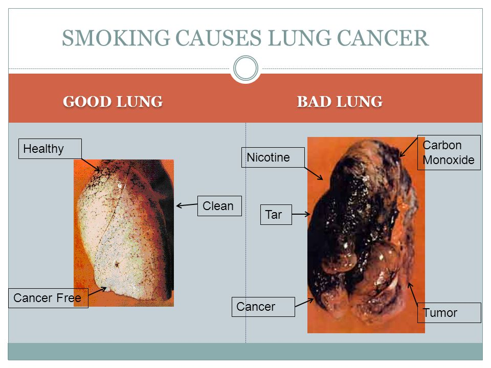 GOOD LUNG BAD LUNG SMOKING CAUSES LUNG CANCER Nicotine Cancer Tar Tumor Carbon Monoxide Healthy Cancer Free Clean