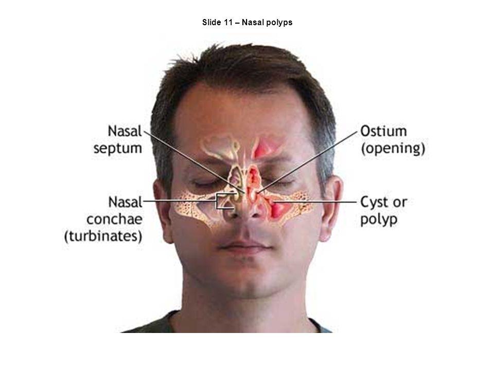 Slide 11 – Nasal polyps