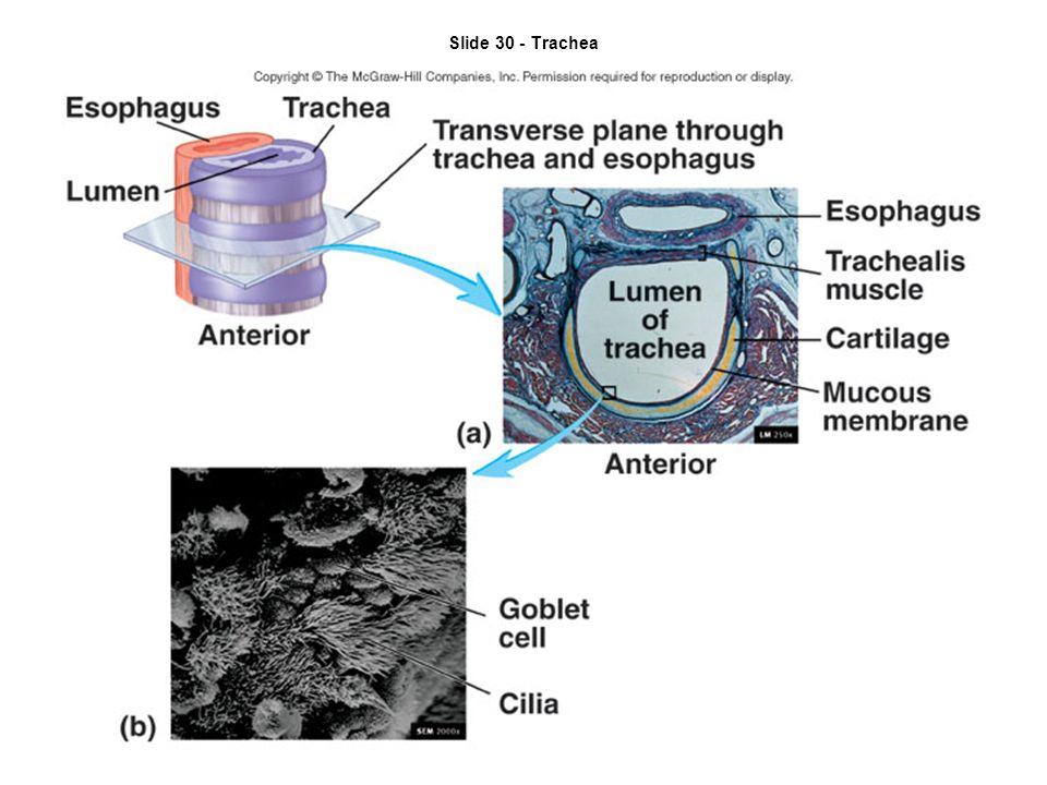 Slide 30 - Trachea