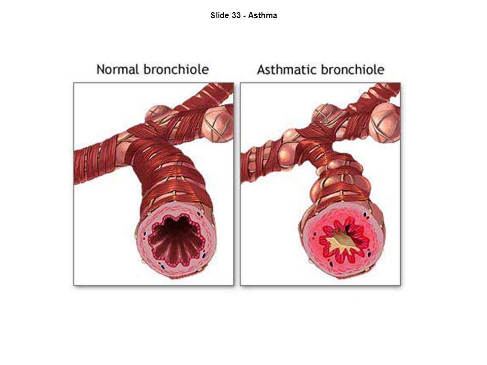 Slide 33 - Asthma