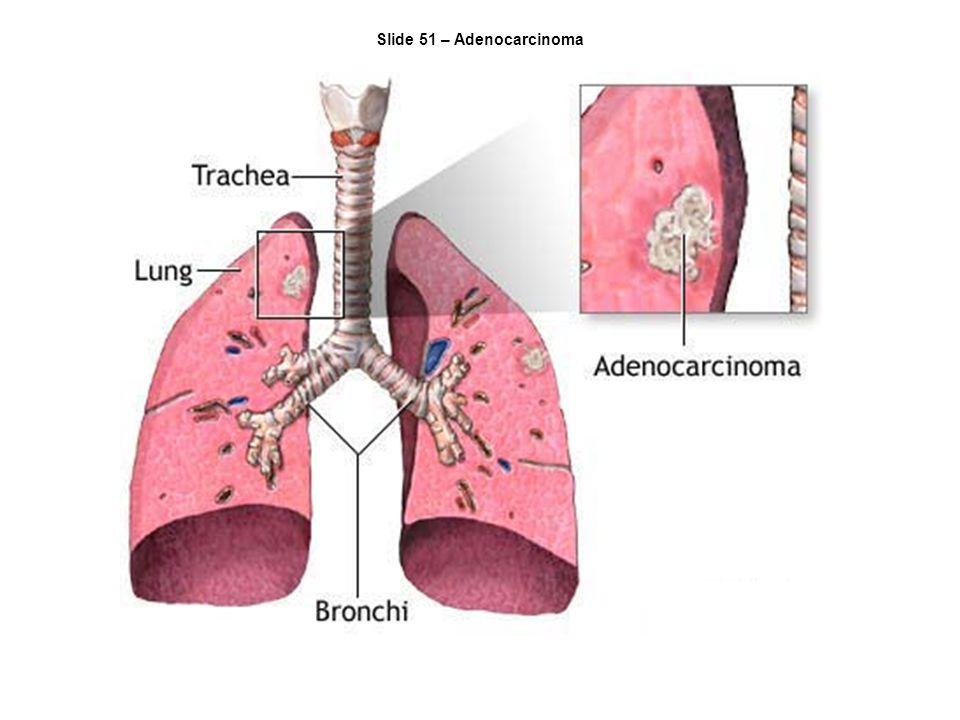 Slide 51 – Adenocarcinoma
