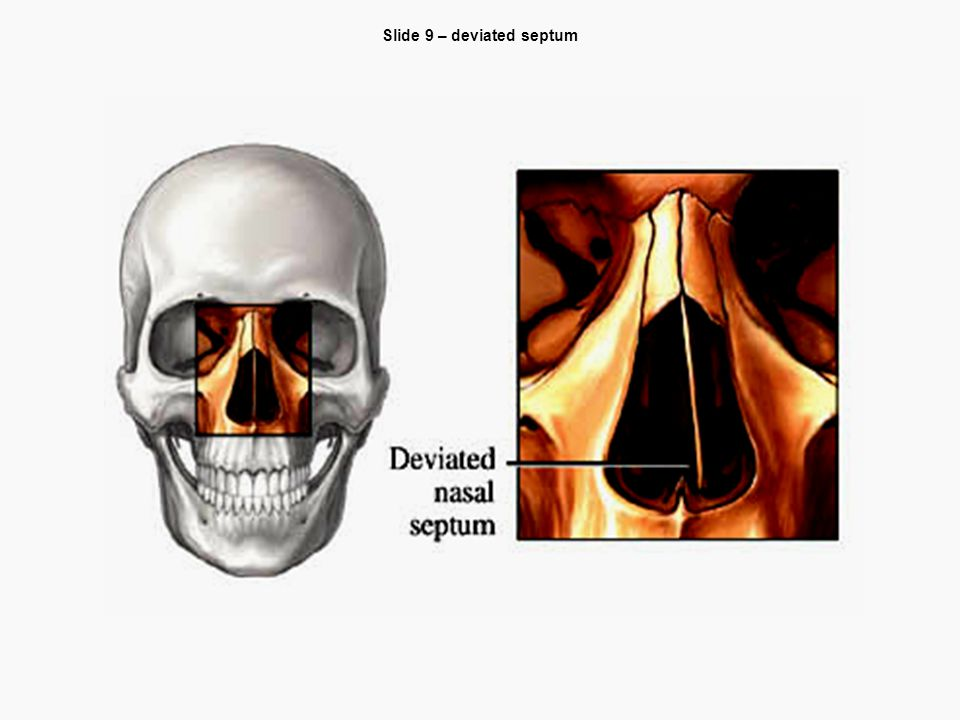 Slide 9 – deviated septum