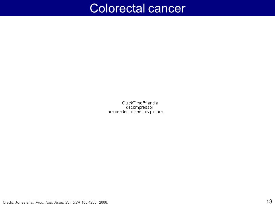 13 Colorectal cancer Credit: Jones et al. Proc. Natl. Acad. Sci. USA 105:4283, 2008.