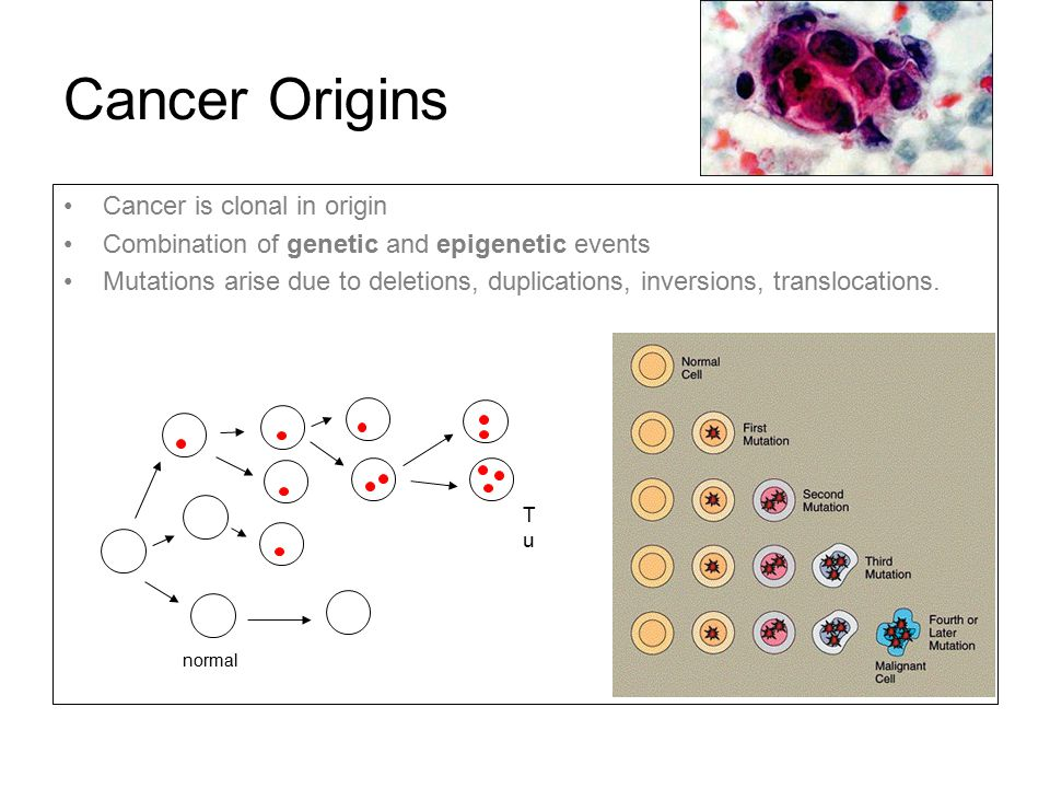 Cancer Origins Cancer is clonal in origin Combination of genetic and epigenetic events Mutations arise due to deletions, duplications, inversions, tra
