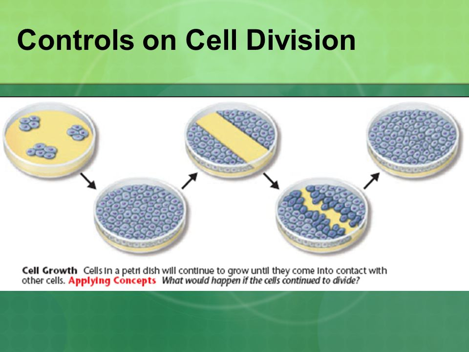 Cancer Class of disease caused by uncontrolled cell division.