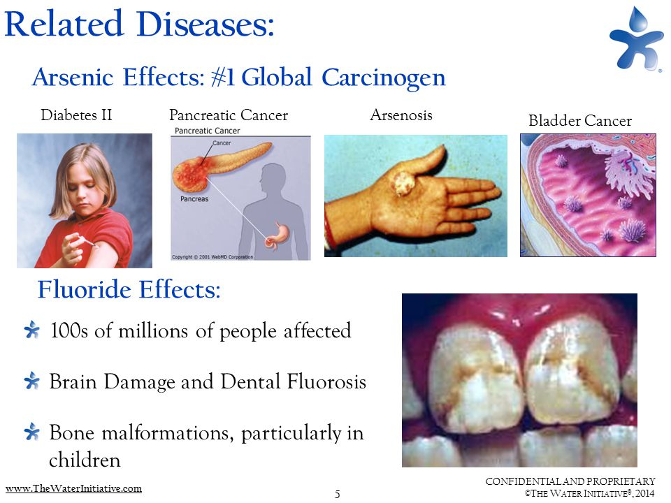 5 CONFIDENTIAL AND PROPRIETARY ©T HE W ATER I NITIATIVE ®, 2014 www.TheWaterInitiative.com Related Diseases: Diabetes IIArsenosis Bladder Cancer Pancreatic Cancer 100s of millions of people affected Brain Damage and Dental Fluorosis Bone malformations, particularly in children Fluoride Effects: Arsenic Effects: #1 Global Carcinogen