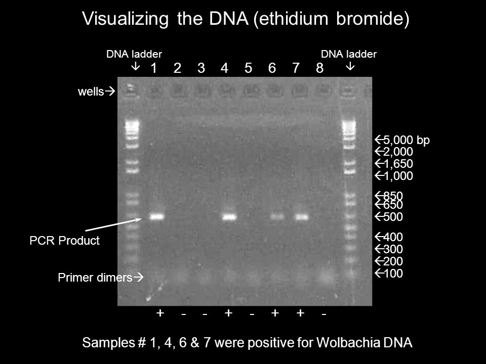 Visualizing the DNA (ethidium bromide)  100  200  300  1,650  1,000  500  850  650  400  5,000 bp  2,000 DNA ladder  DNA ladder  PCR Product 1 2 3 4 5 6 7 8 wells  + - - + - + + - Samples # 1, 4, 6 & 7 were positive for Wolbachia DNA Primer dimers 