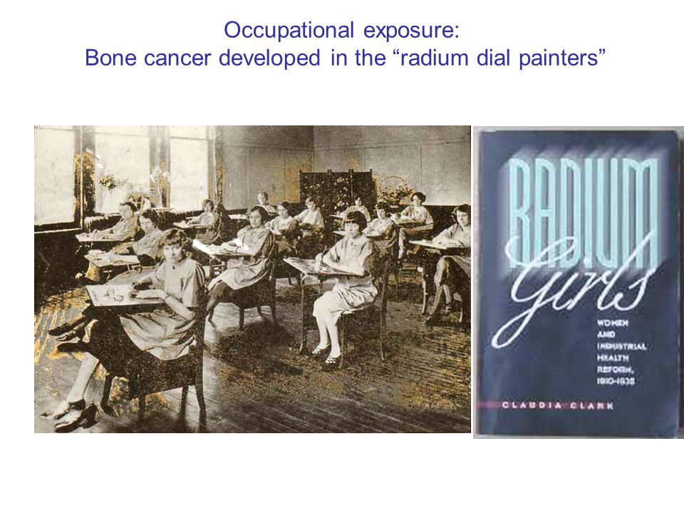 Occupational exposure: Bone cancer developed in the radium dial painters
