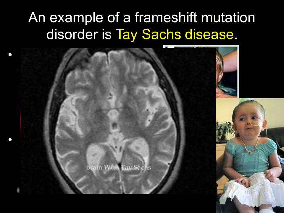 An example of a frameshift mutation disorder is Tay Sachs disease. Children born with this disorder cannot make an enzyme that is critical in breaking