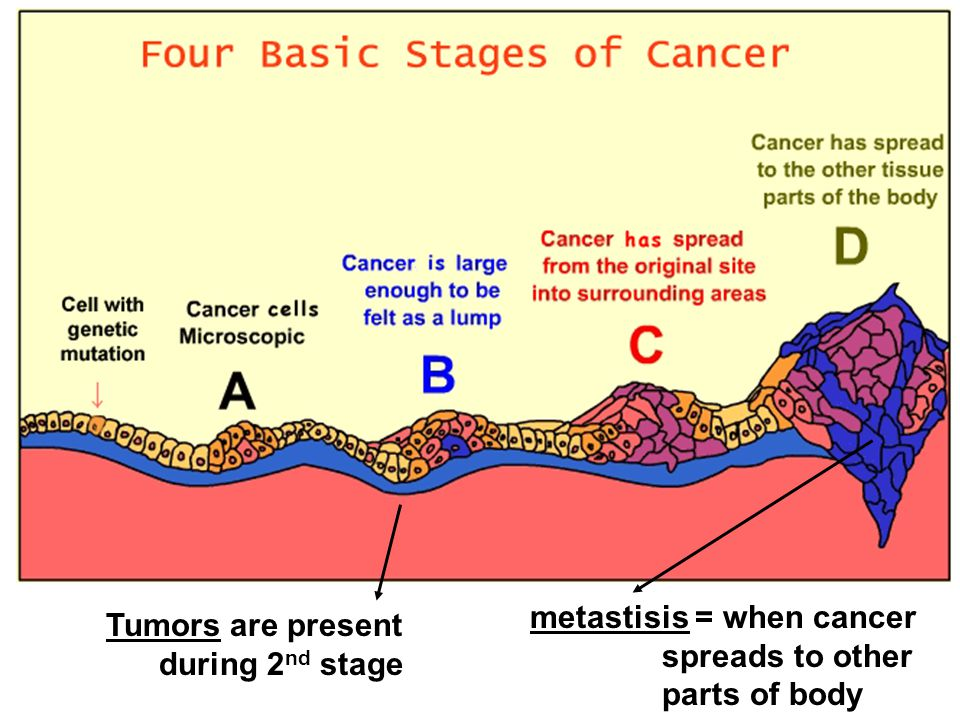 Tumors are present during 2 nd stage metastisis = when cancer spreads to other parts of body