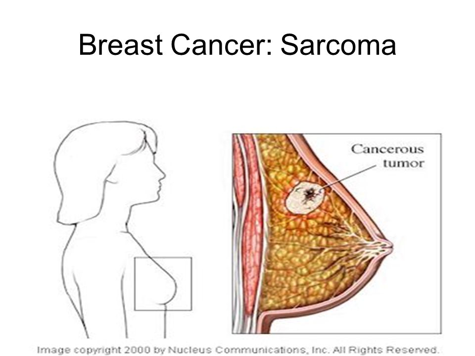 Breast Cancer: Sarcoma
